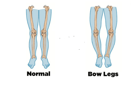 Bow Legs No More: Honest Review